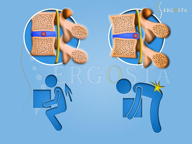 disque-vertebre