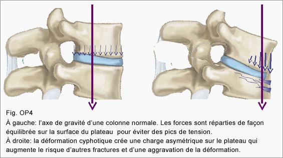 osteoporosis_fig04_fr (1)